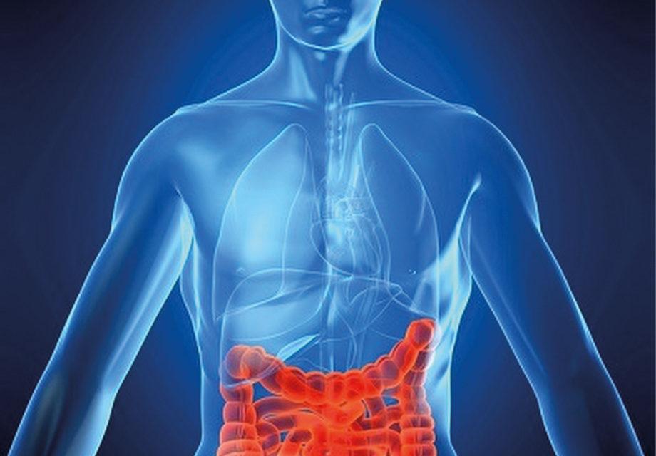 Colite ulcerosa e Chron: <BR>la granulomonocitoaferesi