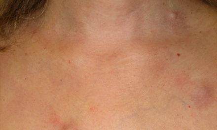 Melanoma metastatico: <BR>nuovi immunomodulanti