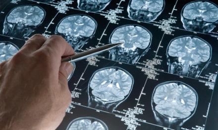 Alzheimer e genetica:<BR>Pisa in un progetto europeo