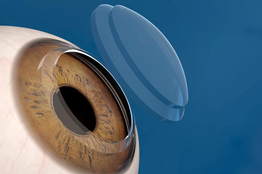 Trapianto corneale:<BR>il Cross-Linking