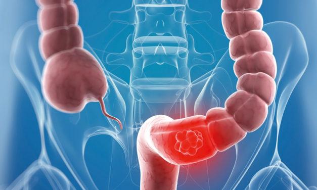 Immunoterapia: non per tutti.<BR>Novità sul tumore colonrettale
